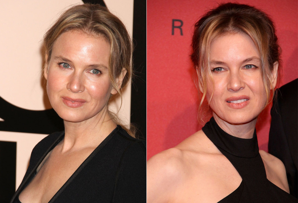renee-before-and-after