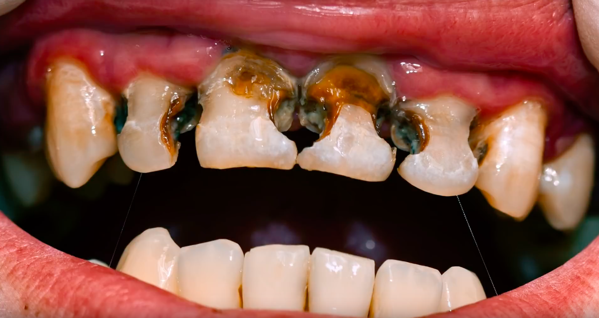 Soft Drink Companies Slam Graphic Tooth Decay Ad From Australian Dental Association